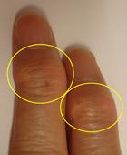 指のヘバーデン結節
