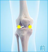 前十字靭帯損傷の膝の痛み