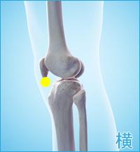 前十字靭帯損傷の膝の横の痛み