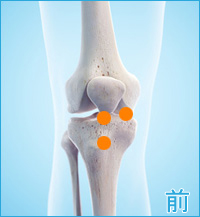 膝の前側の痛み(膝蓋大腿関節症,変形性膝関節症,膝蓋靭帯炎)