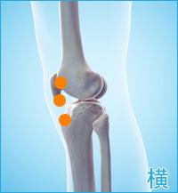 膝の横の痛み(ジャンプ膝,オスグッドシュラッター病)