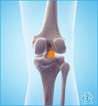膝の裏側の痛み(変形性膝関節症)