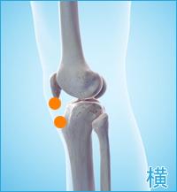 膝の横の痛み(内側側副靭帯損傷をかばった膝の痛み)