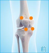 前十字靭帯損傷の痛み(膝の前側)