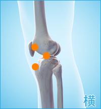 前十字靭帯損傷の痛み(膝の横)