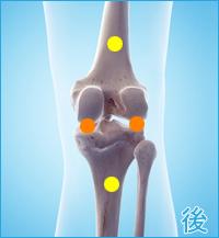 前十字靭帯損傷の痛み(膝の後ろ側)