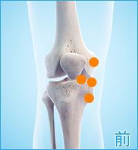 膝の前側の痛み(内側側副靭帯,内側半月板)