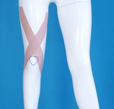 後十字靭帯の補強テープ