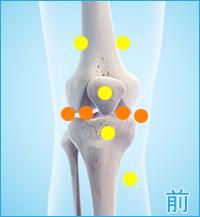 後十字靭帯損傷 膝の前側の痛み(後十字靭帯損傷の合併症の痛み)