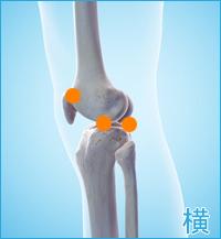 後十字靭帯損傷 膝の横の痛み(後十字靭帯損傷の合併症の痛み)