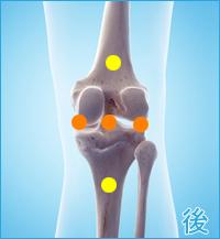 後十字靭帯損傷|膝の後ろ側の痛み(後十字靭帯損傷の合併症の痛み)