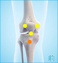 膝の前側の痛み(オスグッドシュラッター病)