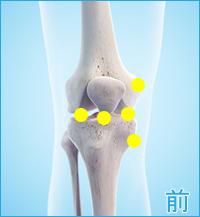 膝の前側の痛み(内側側副靭帯,膝蓋靭帯,内側半月板,外側半月板)