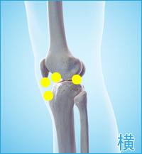 膝の外側の痛み(前十字靭帯,後十字靭帯,膝蓋靭帯)