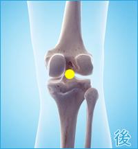 膝の後ろの痛み(後十字靭帯)