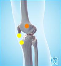 膝の外側の痛み(膝蓋靭帯、腸脛靭帯)