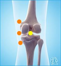 膝の後ろ側の痛み(内側側副靭帯)