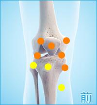 膝の痛み(内側半月板損傷,外側半月板損傷,内側側副靭帯損傷,外側側副靭帯損傷)