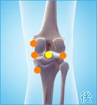 膝の痛み(内側側副靭帯損傷,内側半月板損傷,外側半月板損傷)