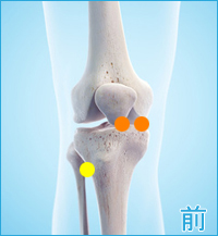 変形性膝関節症の膝の内側の痛み
