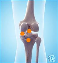 変形性膝関節症をかばった膝の後の痛み