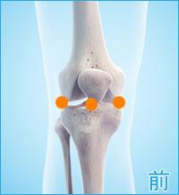 膝の前側の痛み(内側半月板,外側半月板,前十字靭帯)