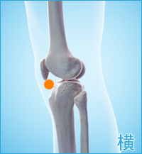膝の外側の痛み(膝蓋靭帯)