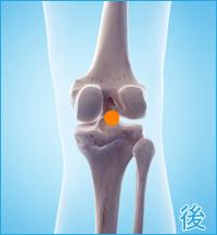 膝の後ろ側の痛み(後十字靭帯損傷)