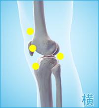 変形性膝関節症の膝の横の痛み