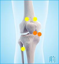 変形性膝関節症の膝の前側の痛み