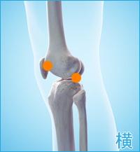 変形性膝関節症の膝の横側の痛み