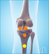 変形性膝関節症の膝の後側の痛み