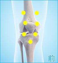 変形性膝関節症の膝の痛み