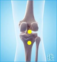 変形性膝関節症の後ろ側の痛み