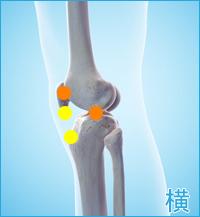 膝の外側の痛み(離断性骨軟骨炎、膝蓋軟骨軟化症)