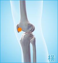 膝の痛み(膝蓋骨側面)