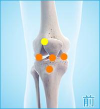 膝の痛み(内側半月板、膝蓋靭帯、膝蓋骨軟化症)