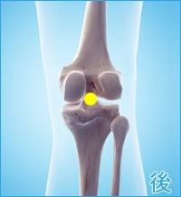膝の痛み(後十字靭帯損傷)