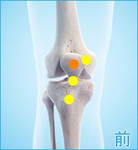 膝の前側の痛み(タナ障害・棚障害)
