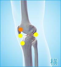 膝の外側の痛み(タナ障害・棚障害)