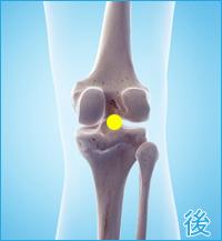 膝の後ろの痛み(タナ障害・棚障害)
