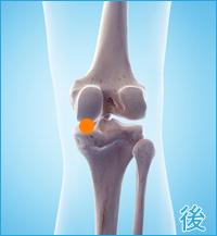 膝の後ろ側の痛み(変形性膝関節症)