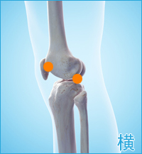膝の横の痛み(膝蓋大腿関節症)