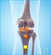 膝の後ろの痛み(膝をかばった痛み)