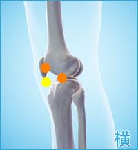 膝の横の痛み(膝蓋軟骨軟化症,膝の軟骨損傷,変形性膝関節症)