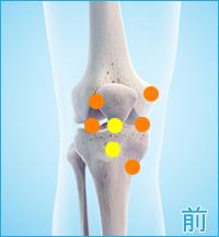 膝の前の痛み(離断性骨軟骨炎、膝蓋軟骨軟化症)