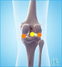 膝の後ろの痛み(離断性骨軟骨炎、膝蓋軟骨軟化症)