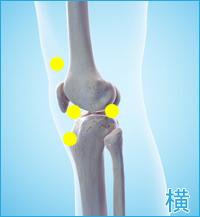 膝の痛み3