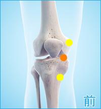 軟骨のすり減った膝の前側の痛み