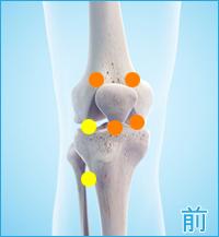 前十字靭帯損傷 膝の前側の痛み